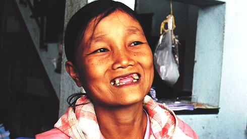 Mùa xuân qua nụ cười của cô gái 18 năm lấy bệnh viện làm nhà