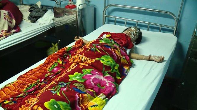 Một trong số các nạn nhân bị bỏng nặng đang được điều trị tại bệnh viện hữu nghị Việt Nam-Cu Ba Đồng Hới sáng 16-9 – ảnh: Quốc Nam
