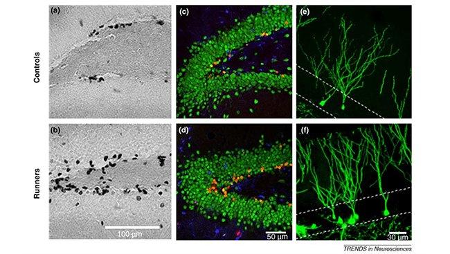 Hình 2: Những con chuột chạy thể dục có số nơron mới - những chấm đen trên ảnh - nhiều gấp đôi những con sống đời lười biếng.
