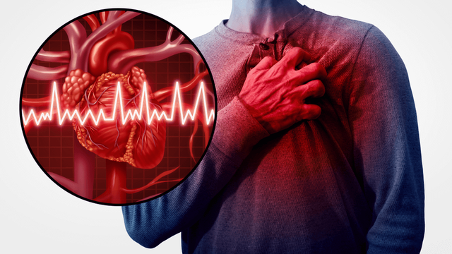 Bệnh tim mạch: Tử thần trên sân bóng